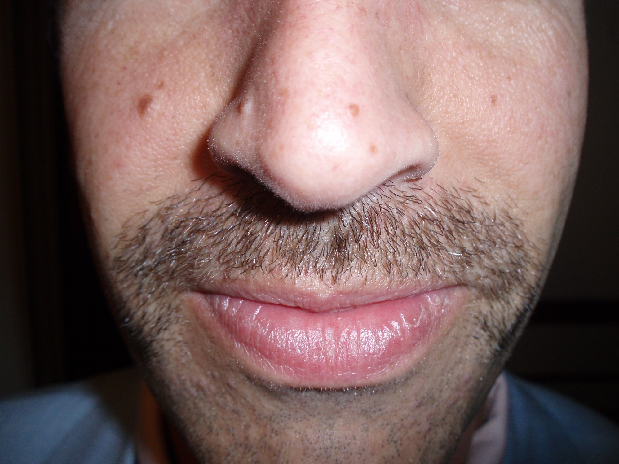 Ronstache Day 2007: Submission